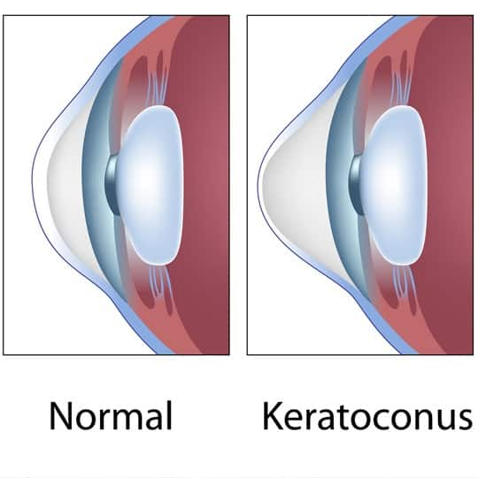 Keratoconus ZIEN Optiek Putten