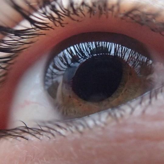 Glaucoom bij ZIEN Optiek Putten