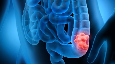 Photo of Colon cancer cases increasing among young adults