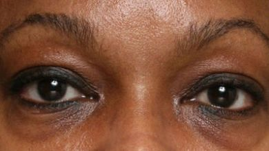 Photo of Why bags form under your eyes, plus useful remedies