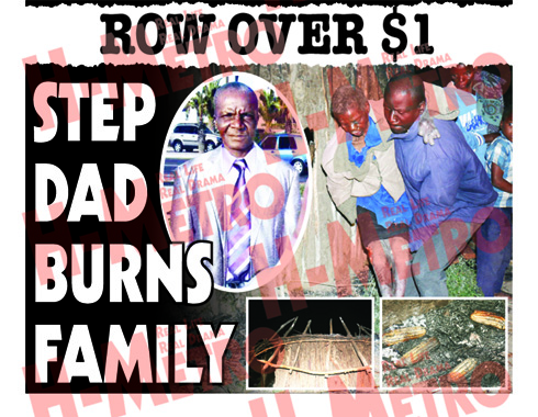 STEP DAD BURNS FAMILY