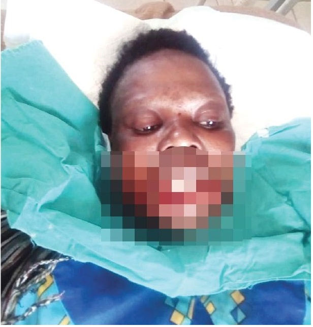 Lady loses lip in polygamous battle