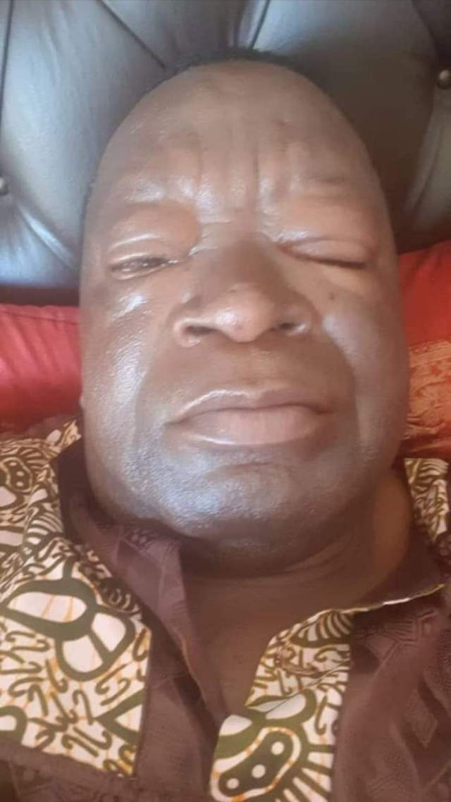 Matemadanda poisoned as Zanu PF inflighting escalates