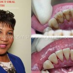 Dental/Oral Health and Your Overall Health and Wellness