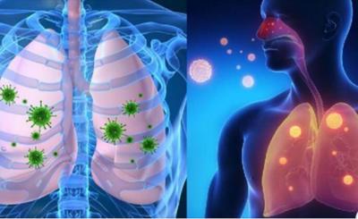 Kaip atskirti širdies skausmą nuo osteochondrozės: simptomų ir gydymo metodų palyginimas