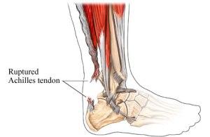achilles tendonitis treatment types