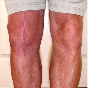 Joint Post Knee Arthroplasty