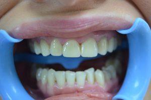 Ön diş kaplama örnek