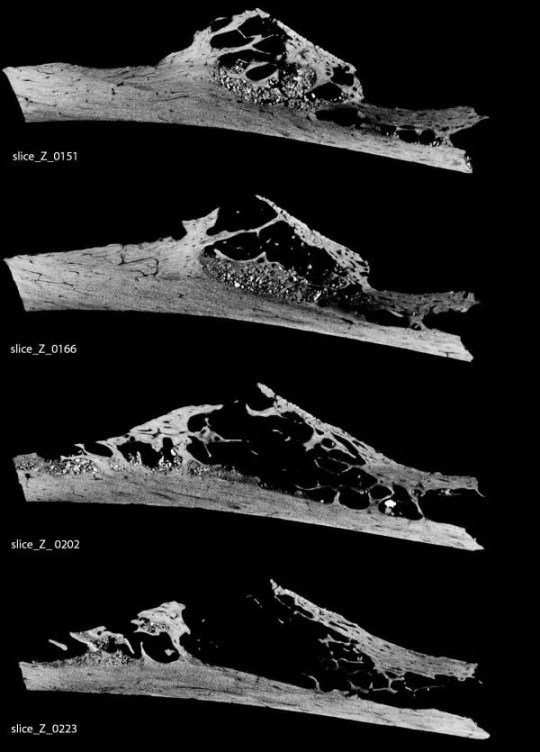 micro ct scan krapina