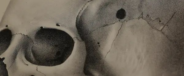 One of the illustrations featured in the book shows a skull punctured by a bullet. Photo: Cambridge University