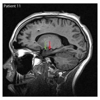 caltech_brain_imaging