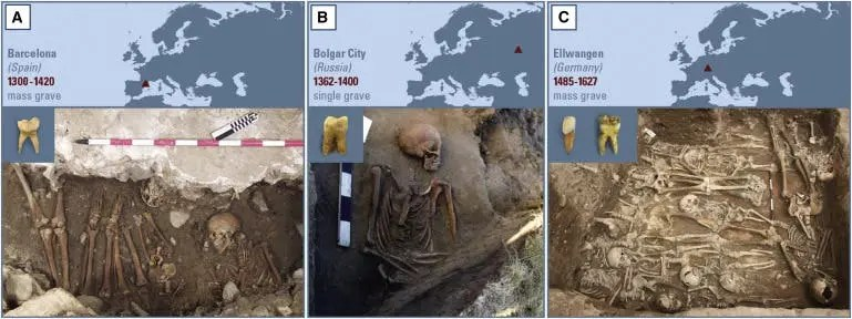A) Tooth sample that was positive for Y. pestis (3031) and mass grave picture from the plague burial in Barcelona. (B) Y. pestis-positive tooth sample and picture of infected individual (2370) from the Ust'-Ierusalimsky tomb of Bolgar City. (C) Picture of mass grave in Ellwangen, and two tooth samples from individual 549_O, found positive for the plague bacterium. Credit: Cell