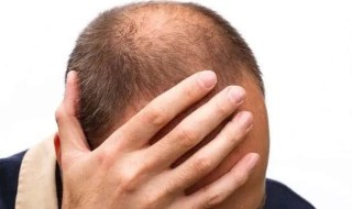 Male baldness.