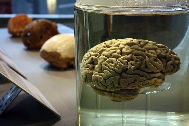 Stoner Steals Brain to Buzz on Formaldehyde