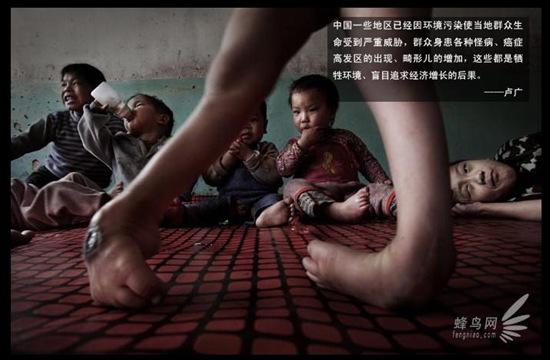 Bambini-cinesi-deformi-causa-elevato-inquinamento