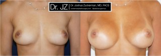 A recent before and after image of a breast augmentation by Dr. Zuckerman. Patient had Mentor round silicone implants placed submuscular.