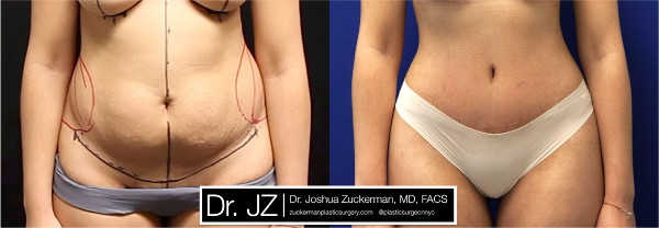 Frontal view of one of Dr. Zuckerman's tummy tuck surgery outcomes. Images were taken before surgery and three months after.