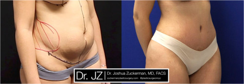 Right oblique view of one of Dr. Zuckerman's tummy tuck surgery outcomes. Images were taken before surgery and three months after.