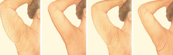Example incision patterns for arm lift surgery or brachioplasty. Source: American Society of Plastic Surgeons