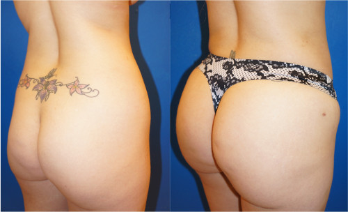 Posterior left oblique view of Buttock Augmentation (Brazilian Butt Lift) performed by Dr. Zuckerman. Images were taken before surgery and one week after surgery.