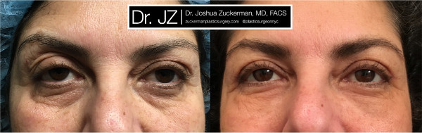 Frontal view of an eyelid surgery outcome by Dr. Zuckerman. Patient underwent an upper blepharoplasty and fat grafting to the lower eyelids. Images were taken before surgery and one month after surgery.