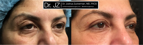 Right oblique view of an eyelid surgery outcome by Dr. Zuckerman. Patient underwent an upper blepharoplasty and fat grafting to the lower eyelids. Images were taken before surgery and one month after surgery.