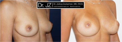 Right oblique view of a breast augmentation surgery outcome from Dr. Zuckerman before surgery and one year after surgery.