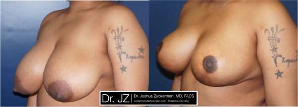 Left oblique view of a breast reduction surgery outcome from Dr. Zuckerman before surgery and one year after surgery.
