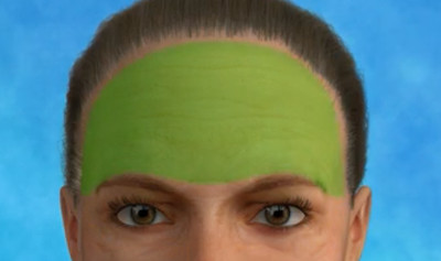 Illustrative brow lift image demonstrating the addressable areas of this cosmetic surgery procedure.
