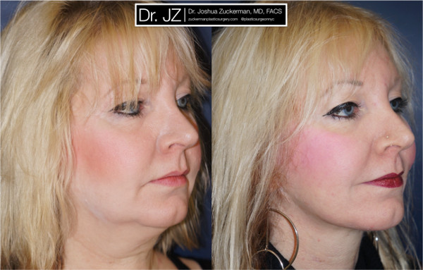 Right oblique view of one of Dr. Zuckerman's face lift surgery patients. Images were taken before surgery and one year after surgery.