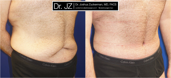 Body Contouring After Weight Loss Nyc Top Ranked Zuckerman Plastic