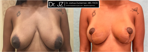 Frontal view of a breast lift surgery (mastopexy) outcome from Dr. Zuckerman before surgery and one year after surgery.