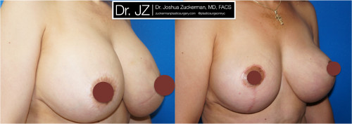 Right oblique view of a before and after of breast augmentation / mastopexy revision surgery Dr. Zuckerman performed. Patient was unhappy with asymmetry from a previous cosmetic surgery procedure, which had also damaged her left nipple. Dr. Zuckerman performed an implant exchange and breast lift. Images taken before surgery and one month after surgery.