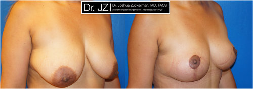 Right oblique view of a breast lift surgery (mastopexy) outcome from Dr. Zuckerman before surgery and one month after surgery.