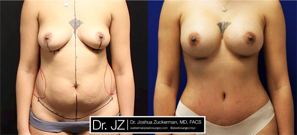 Frontal view of one of Dr. Zuckerman's mommy makeover surgery outcomes where patient had undergone a breast augmentation and tummy tuck. Images were taken before surgery and three months after.