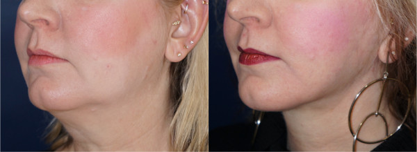 Left oblique view of a neck lift patient by Dr. Zuckerman. Images were taken before surgery and one year post-op.