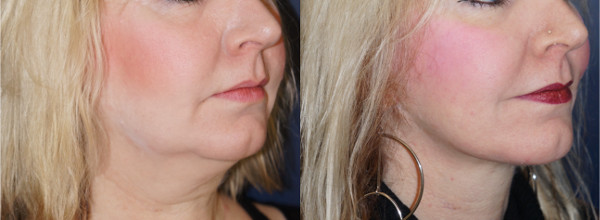 Right oblique view of a neck lift patient by Dr. Zuckerman. Images were taken before surgery and one year post-op.