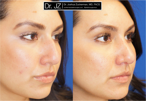 Right oblique view of rhinoplasty patient of Dr. Zuckerman. Images were taken before surgery and three months after surgery.