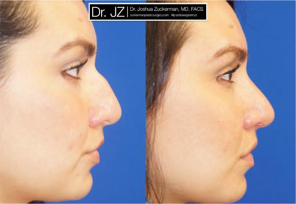 Rhinoplasty (Nose Surgery) NYC – Top Ranked Zuckerman