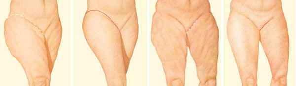 Example incision patterns for thigh lift surgery. Source: American Society of Plastic Surgeons