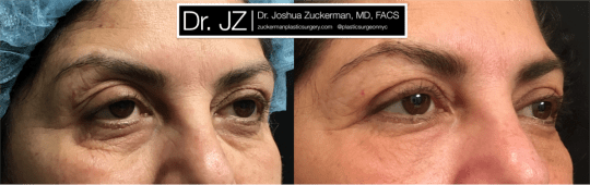 Right oblique view of Blepharoplasty patient, female, 1 month post-op. Also performed fat grafting to the lower eyelids and tear troughs.