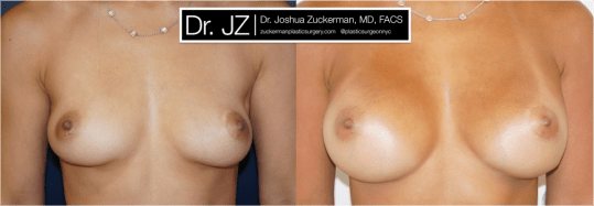 Frontal view of Breast Augmentation patient, female, 1 year post-op. 255cc Sientra round silicone breast implants. Submuscular implacement, Inframammary fold incision.