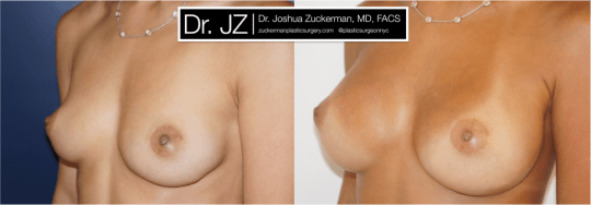 Left oblique view of Breast Augmentation patient, female, 1 year post-op. 255cc Sientra round silicone breast implants. Submuscular implacement, Inframammary fold incision.