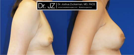 Right profile view of Breast Augmentation patient, female, 1 month post-op. 400cc Mentor Smooth Round silicone breast implants, with submuscular placement.