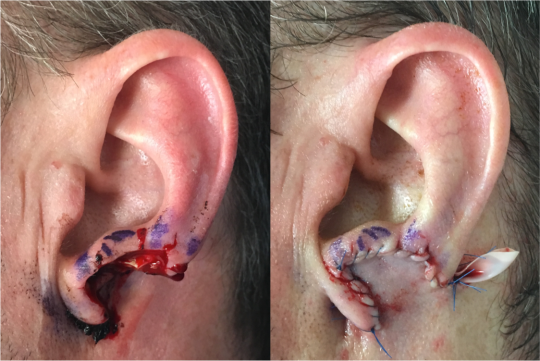 Before & after of the initial stage one of a two-stage ear lobe reconstruction. In initial stage, ear lobe defect is covered with a flap from behind the ear. Six weeks later, the flap will be detached and the ear lobe constructed.