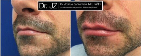Left oblique view of Lip Augmentation patient, male, day of. Injected 0.6cc of Juvederm Ultra Plus. Corrected lip asymmetry of righthand point of Cupid's bow.