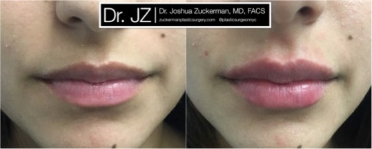 Frontal view of Lip Augmentation patient, female, day of. Injected 0.7cc of Juvederm Ultra Plus for suble lip augmentation, accentuated philtral columns.