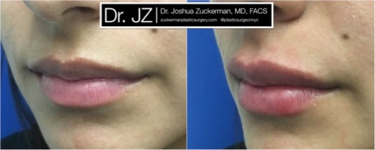 Left oblique view of Lip Augmentation patient, female, day of. Injected 0.7cc of Juvederm Ultra Plus for suble lip augmentation, accentuated philtral columns.