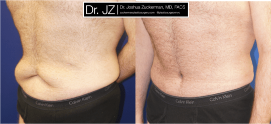 Left oblique view ofAbdominoplasty (Tummy Tuck) / Post-weight loss patient, male, 2 months post-op. Patient had lost 100 lbs prior to surgery.