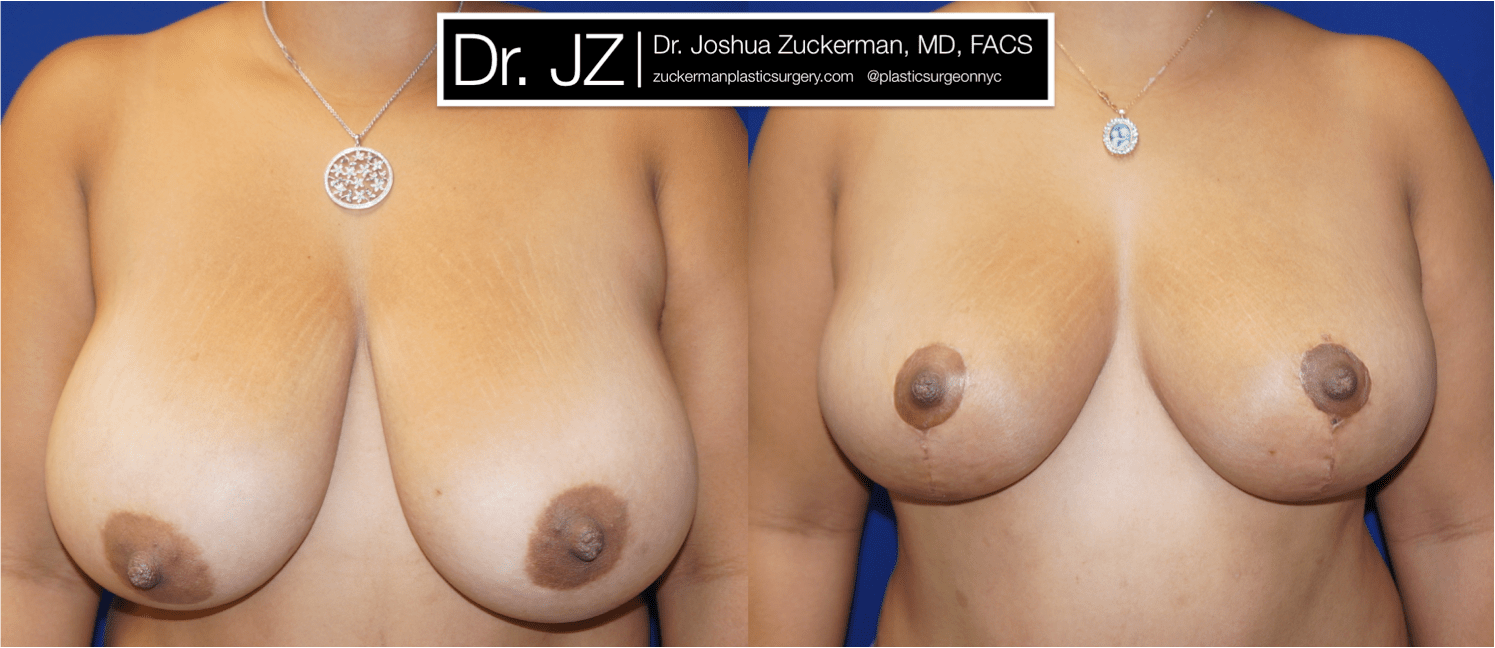 Frontal view of Breast Lift patient, female, 1 month post-op. Vertical breast lift.